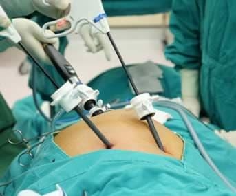 endoscopia laparoscopica
