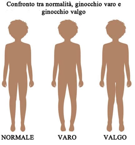Ginocchio Varo Valgo