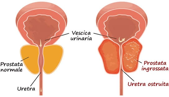 Ipertrofia Prostatica