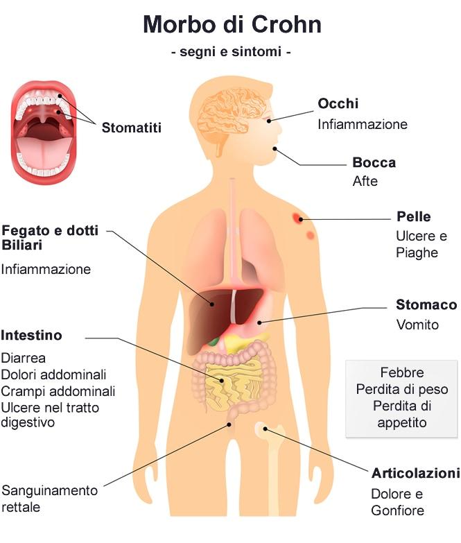 Sintomi Morbo di Crohn