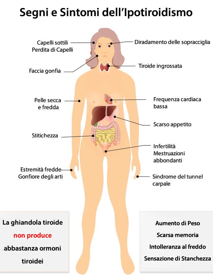 Sintomi Ipotiroidismo
