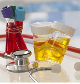 esame delle urine esame 24 ore su 24
