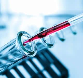 Granulociti Test