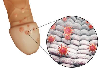 how to get zovirax