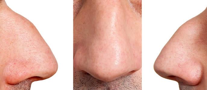 naso aquilino