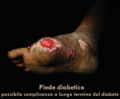 piede diabetico