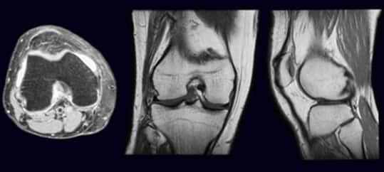 risonanza magnetica al ginocchio