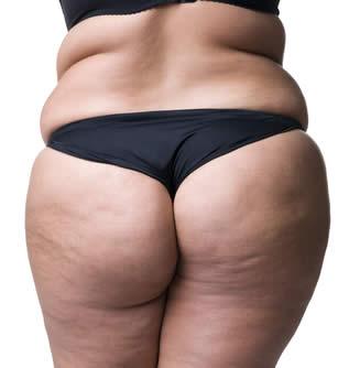 Ritenzione Idrica Cellulite