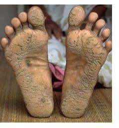 Su una gamba le vene sono diventate visibili